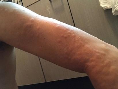 ヒメシャラの剪定時についていたチャドクガの毒針にさされた腕(1)