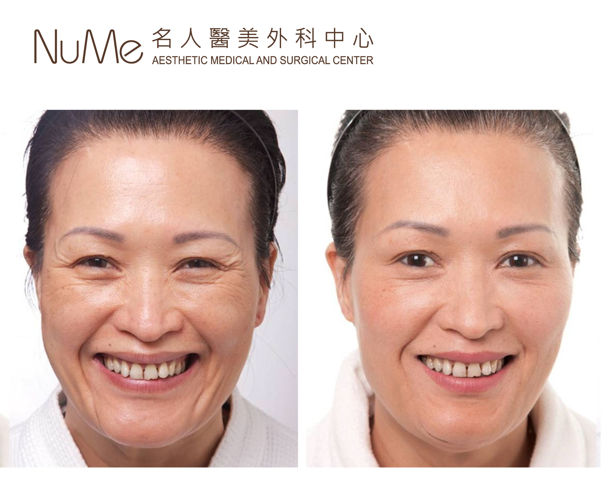 NuMe Facebook Before & After Photos (Comments) - Botox + Xeomin 瘦面-02_official - NuMe醫學美容中心