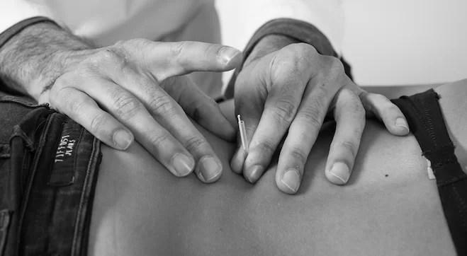Lombalgia acupuntura osteopatia