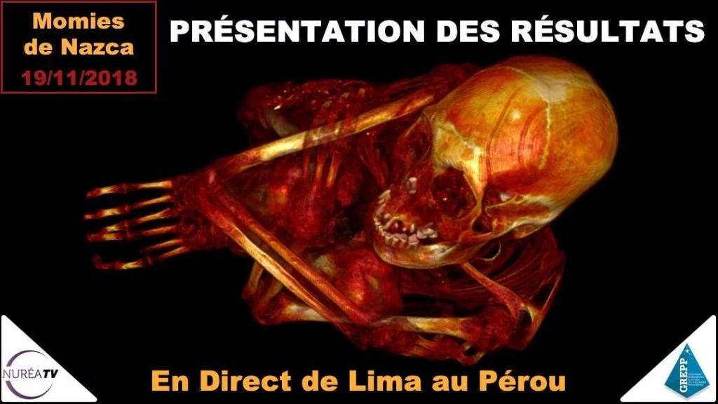 momies de nazca présentation des résultats à Lima sur Nuréa Tv
