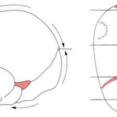 Label Heart Diagram 1999 Ford F250 Ignition Wiring Fetal Skull   Nurse Key