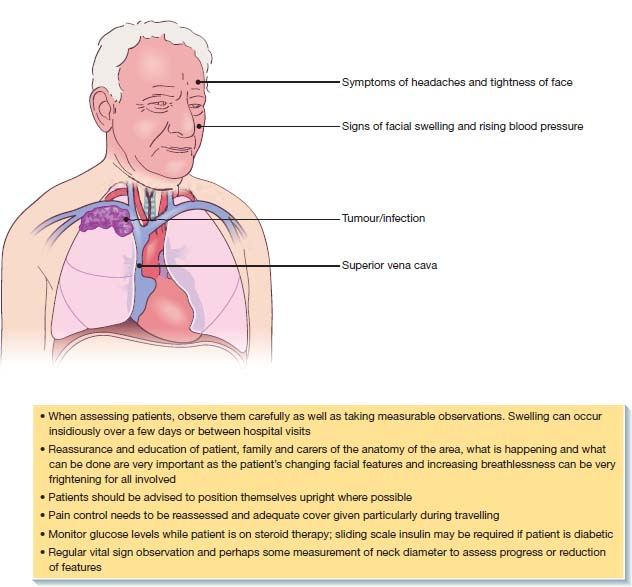 Top half of manÕs body with markings: forehead- symptoms of headaches, below left eye- signs of facial swelling, upper right lung- tumor, superior vena cava. Below: six points listed for nursing care in superior vena cava obstruction.