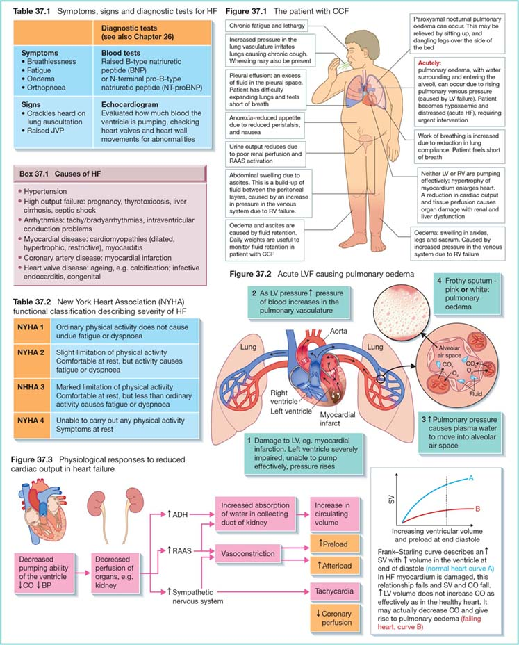 Diagram shows patient with CCF as chronic fatigue and lethargy, swelling in ankles, legs and sacrum, urine output reduces, et cetera. It also shows Symptoms (Fatigue, Oedema), signs and diagnostic tests for HF, causes of HF as hypertension, arrhythmias, coronary artery disease, et cetera.