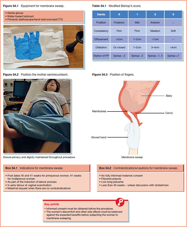 Sheet shows membrane sweep equipment with markings for sterile gloves, water-based lubricant and pinnards stethoscope/hand held sonicaid/CTG, and photograph shows gloves on piece of paper on top of table.