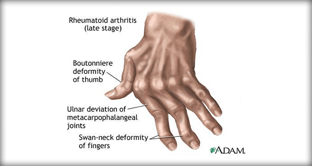 Rheumatoid Arthritis Nursing Management  Interventions