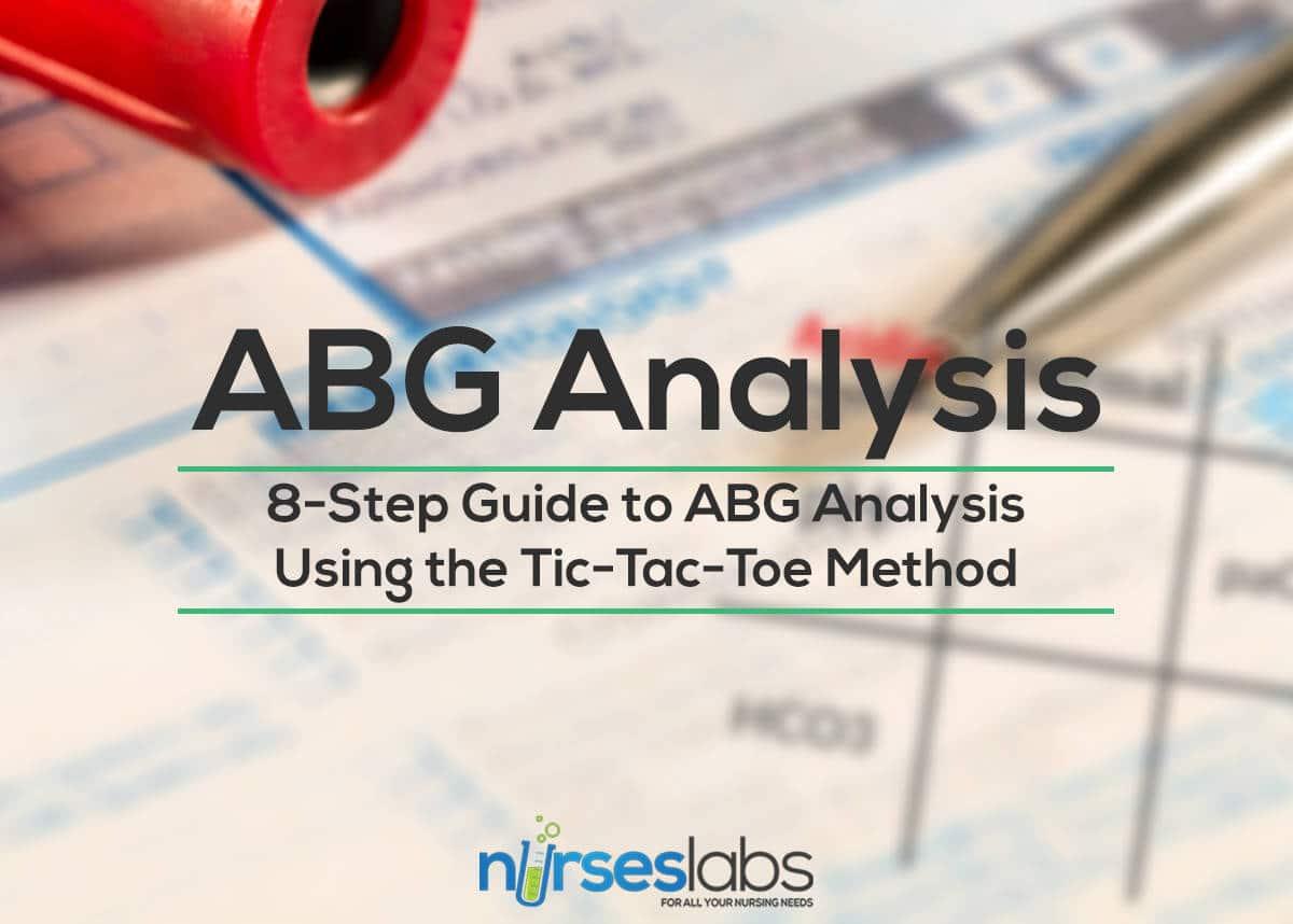 8 Step Guide To Abgysis Tic Tac Toe Method