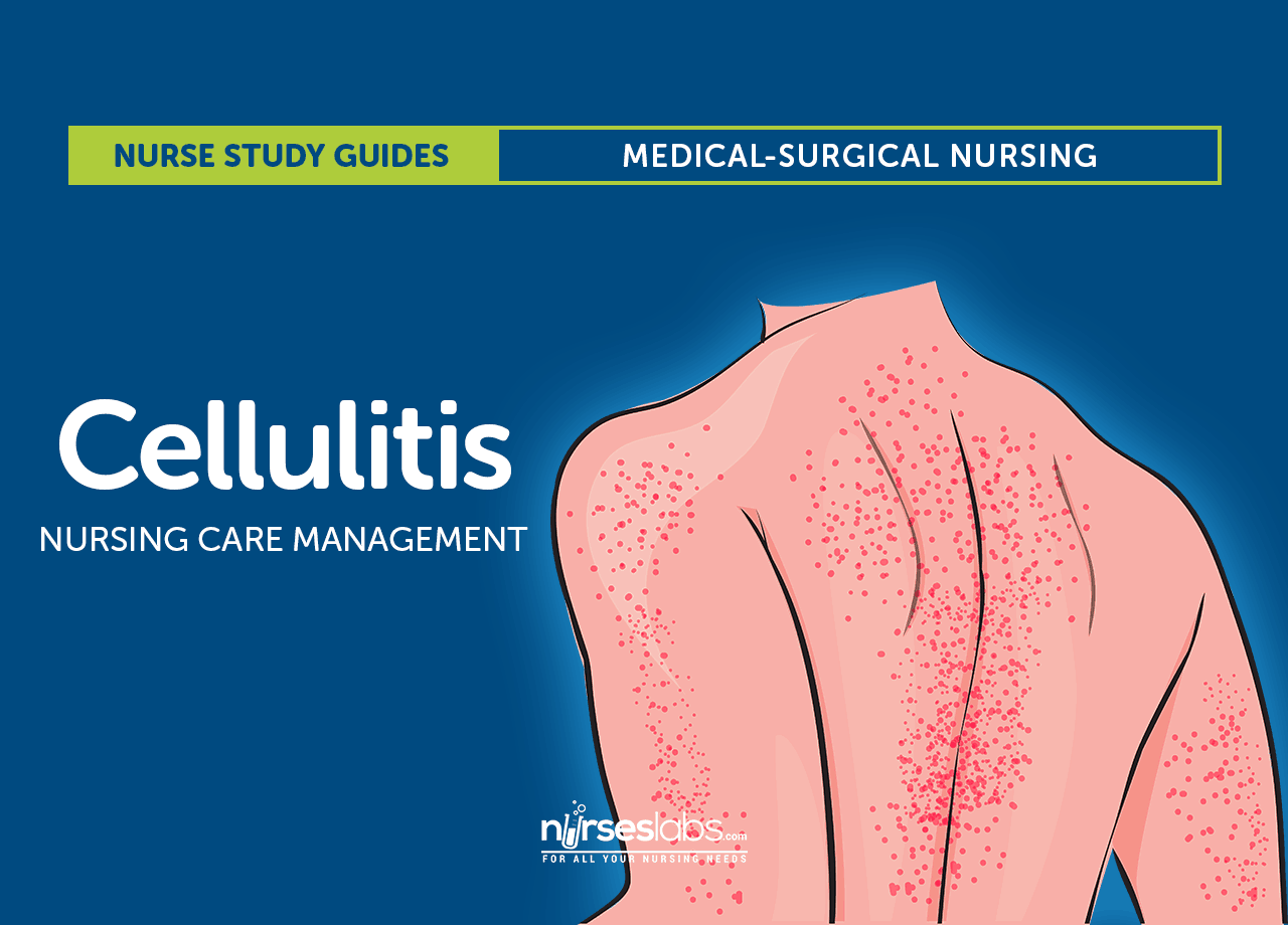 Cellulitis Nursing Care And Management Study Guide