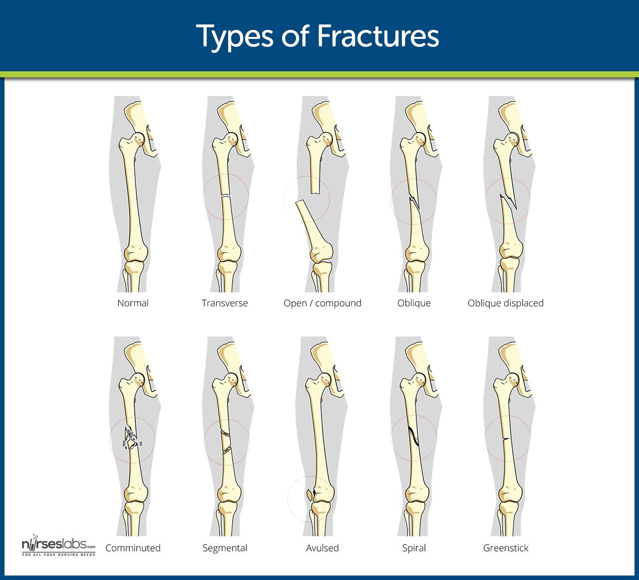 Fracture Nursing Care Management Study Guide