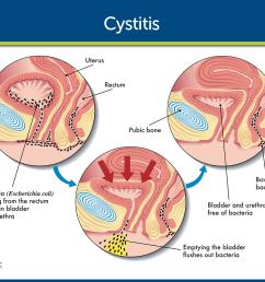 cystitis pathophysiology nursing care [ 1280 x 969 Pixel ]