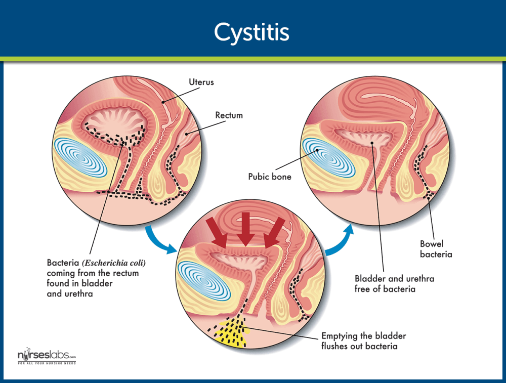 medium resolution of cystitis pathophysiology nursing care