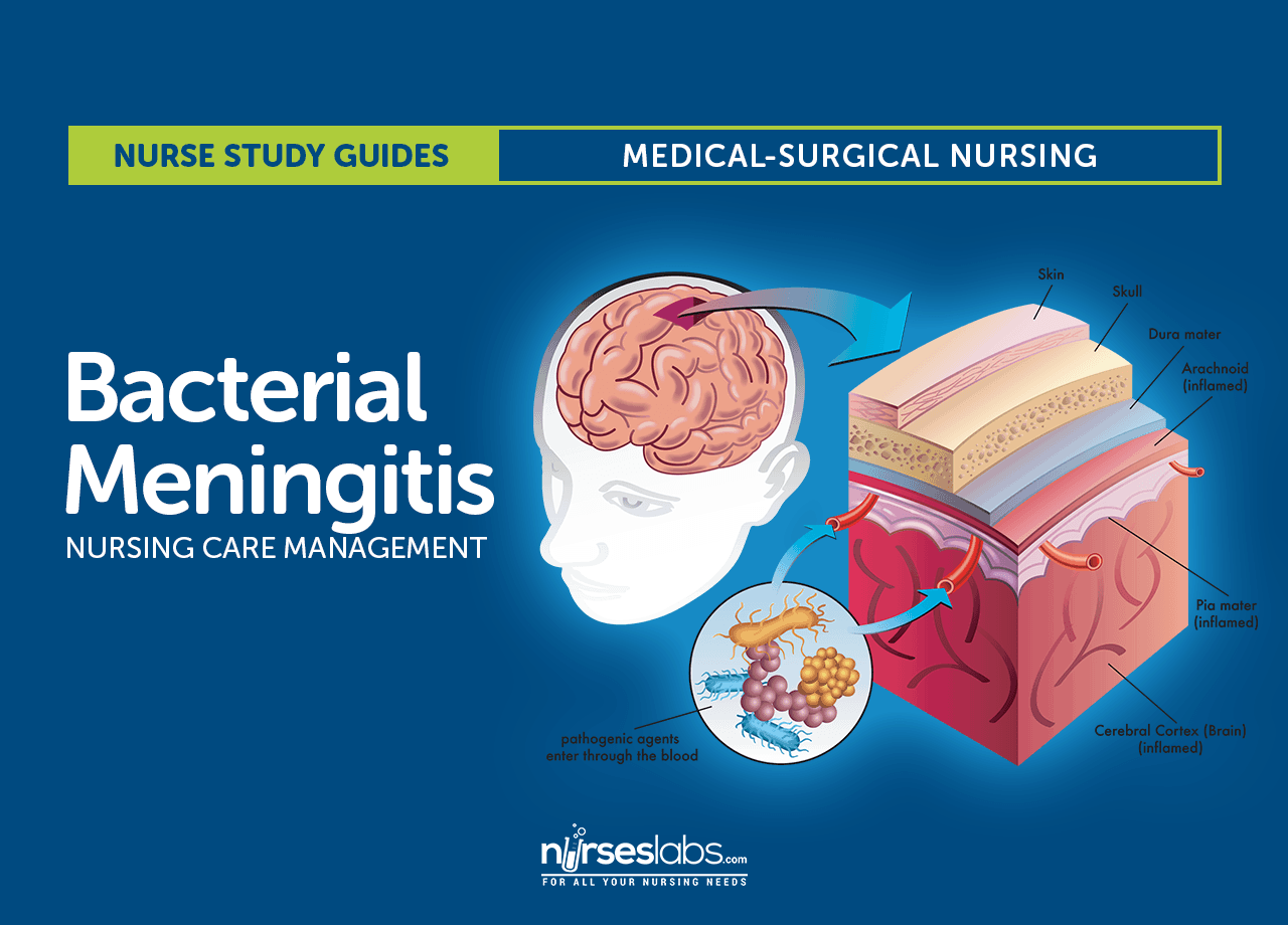 Bacterial Meningitis Nursing Care And Management Study Guide