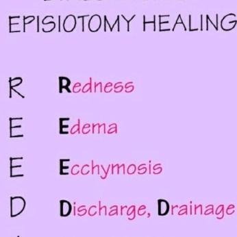 Episiotomy healing
