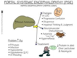 Portal Systemic Encephalopathy