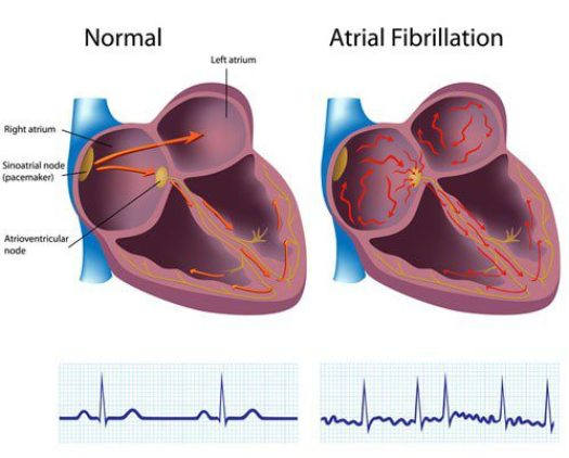 Atrial Fibrillation drawing