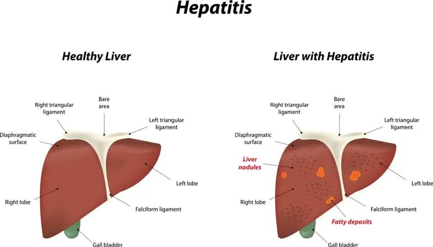 Image result for hepatitis pathophysiology