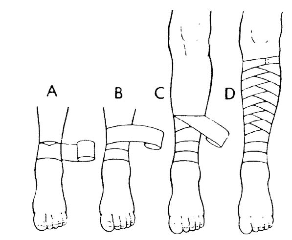 Directions On How To Apply Roller Bandages — Better Life