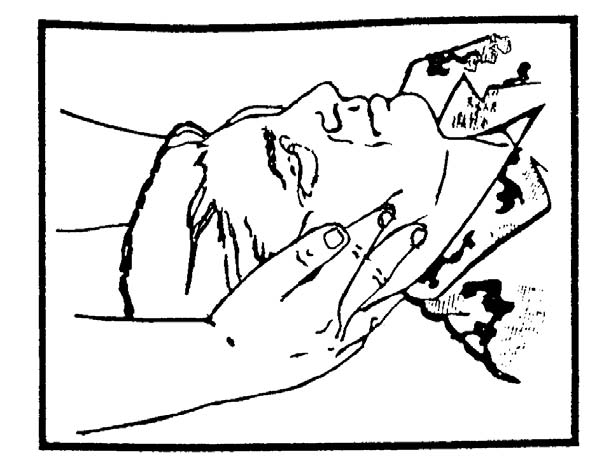 2-5. IMMOBILIZING A CASUALTY'S NECK WITH CASUALTY LYING DOWN