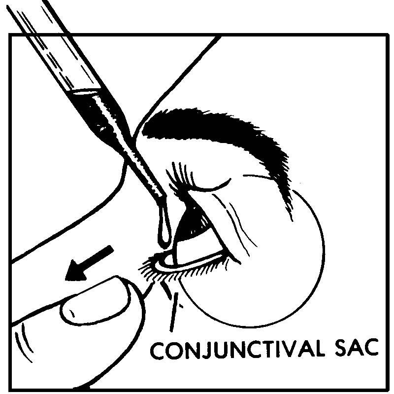 Conjunctival Sac Diagram