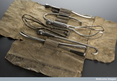 "Birthing instruments from another era. The late-1800s ""man-midwife"" or obstetrician to whom these instruments belonged would usually only be called to attend wealthy women's births or if something went wrong and required surgery. (Medical Photographic Library/Science Museum, London 