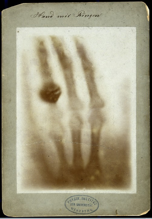 Print from one of the first radiographs (x-ray photos), made by Wilhelm K. Röntgen in 1895. This is commonly thought to be of his wife's hand. (Wellcome Library no. 32971i | CC BY)