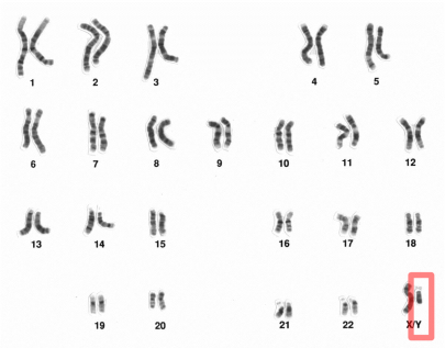 """Human sex is not simply a chromosome complement."" (Chromosome banding highlighting Y chromosome/National Human Genome Research Institute 