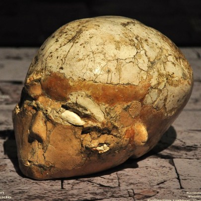 A human skull that has some orangeish plaster molded to it to create facial features