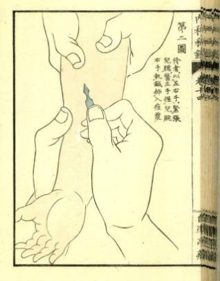 Drawing of a person's forearm and hand, being held in place at the forearm by another set of hands, while yet another set of hands grasps the arm's wrist and sticks a sharp fountain-pen like instrument into the forearm.