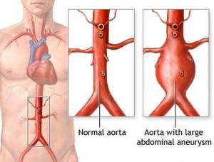 Types of Aortic Aneurysm Disease with Causes  and Nursing Intervention