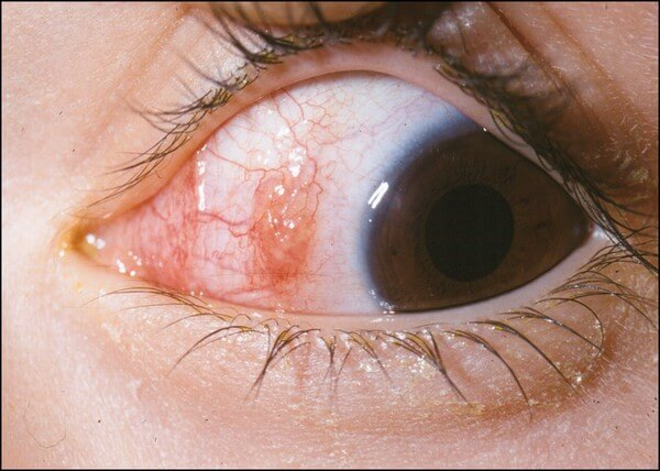 Conjunctivitis Disease: Causes,Treatment and Nursing Intervention