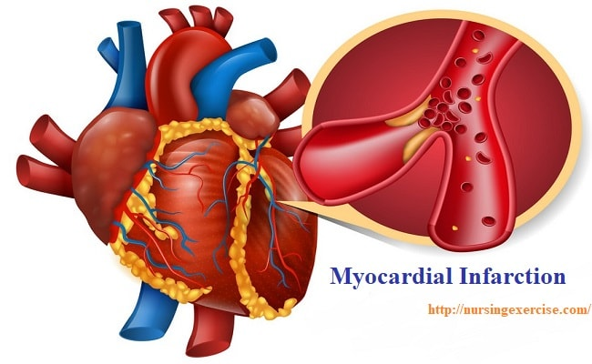 Myocardial Infarction Disease with Cause and Nursing