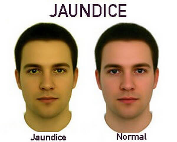 Jaundice Disease with Causes, Treatment and Nursing Intervention