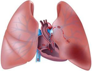 Pulmonary Embolism Disease with Causes  and Nursing Intervention