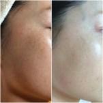 Hyperpigmentation reduced, moisture tolerance increased using human stem cell microneedling series