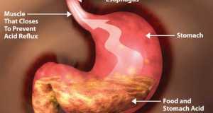 एसिडिटी और सीने की जलन से छुटकारा पाने के लिये करें यह 10 बदलाव , Suffering from acidity and heartburn do these 10 changes