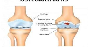 जानिये क्या है जोड़ों और हड्डियों में दर्द का कारण, लक्षण और उपचार , Know about Joint and Bone Pain, Symptoms and Treatment