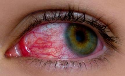 आँखों की जलन दूर करने के नुस्खे, Remedies for irritation in Eyes
