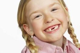 dentinho-de-leite