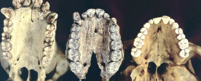 Evolution de la dentition