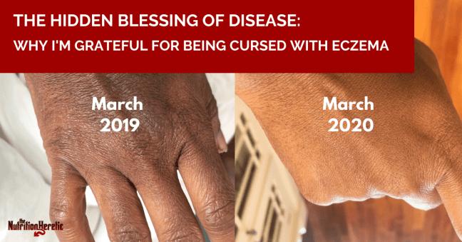 Hidden blessing of disease