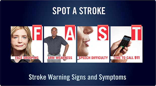 Know These Stroke Symptoms FAST