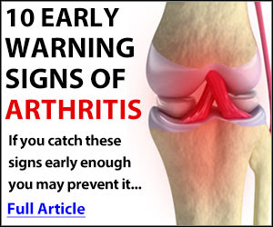 Free Arthritis Book – Limited Time Offer