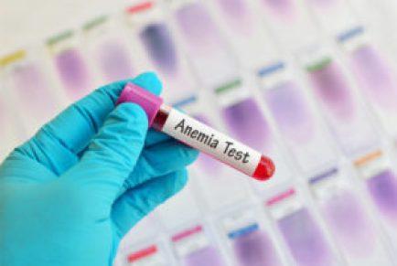 اختبار فقر الدم