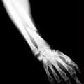 China Report: Osteoporosis