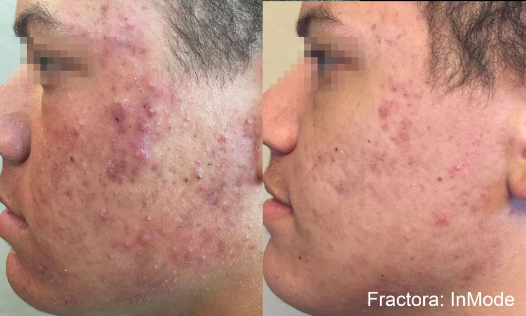 Fractora™ treatment in Murray, Utah.