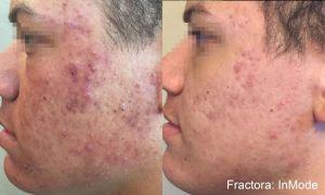 Draper, UT Fractora skin resurfacing, before and after