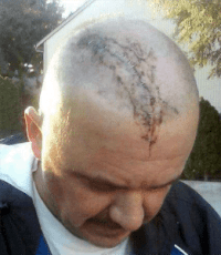 Staples Head Wound Jeffrey Fields Scott Assault