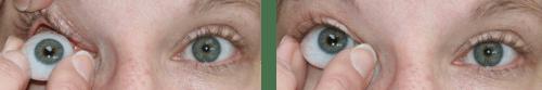 prosthetic eye insert
