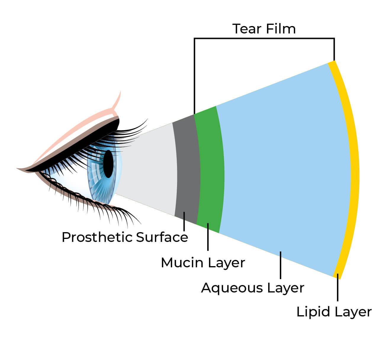 diagram of artificial eye alarm pir sensor wiring tears in the socket northwest design lubricants shown diagrams