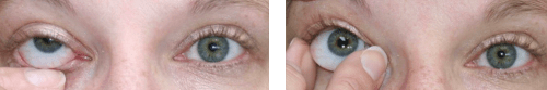 prosthetic eye care removal of artificial eye