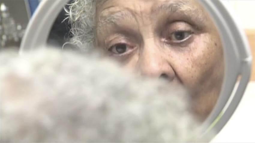 Woman Gets New Prosthetic Eye